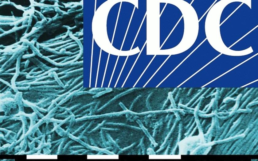 Americké CDC varuje: do začátku roku 2015 až 1,4 milionu nakažených ebolou