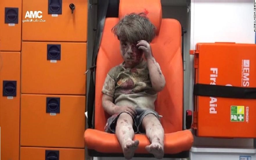 Internetom sa šíria zábery malého chlapca, ktorý prežil bombardovanie v Sýrii