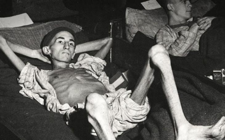Tyfus, malárie, hladovění. Jak Amerika ve jménu vědy experimentovala na odpůrcích války