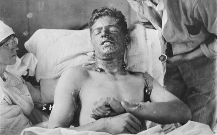 Bojové plyny obrat v první světové války nepřinesly, měly ale značný psychologický efekt